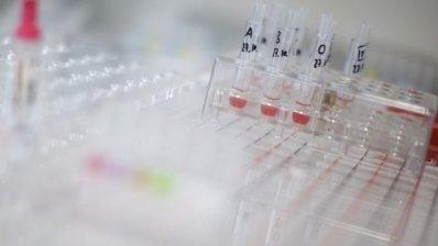 Takeda затвердила препарат, який потрібно використати протягом 3 діб після виготовлення
