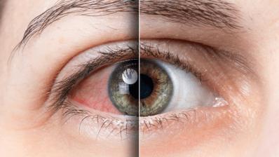 Bausch успешно испытала препарат для лечения синдрома сухого глаза