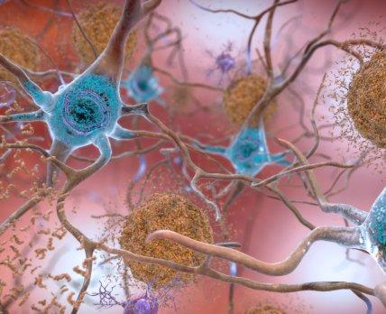 Ученые нашли новые терапевтические мишени для разработки лекарств от болезни Альцгеймера