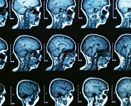На руинах памяти: настоящее и будущее болезни Альцгеймера