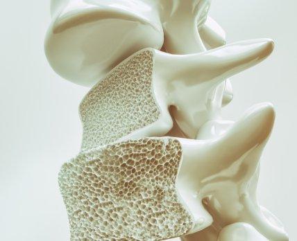 Новая форма старого препарата повысит эффективность лечения остеопороза
