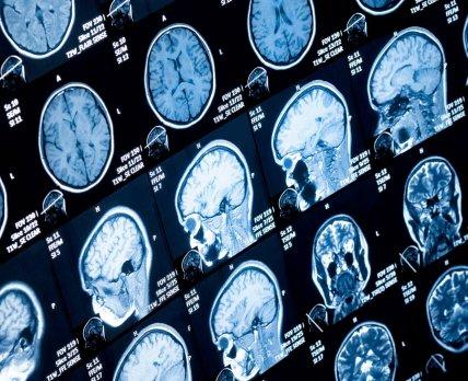 Онколитический препарат продемонстрировал эффективность при смертельном раке мозга