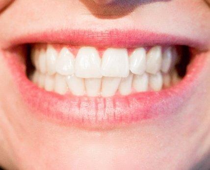Ученые разрабатывают препарат для полного восстановления зубов